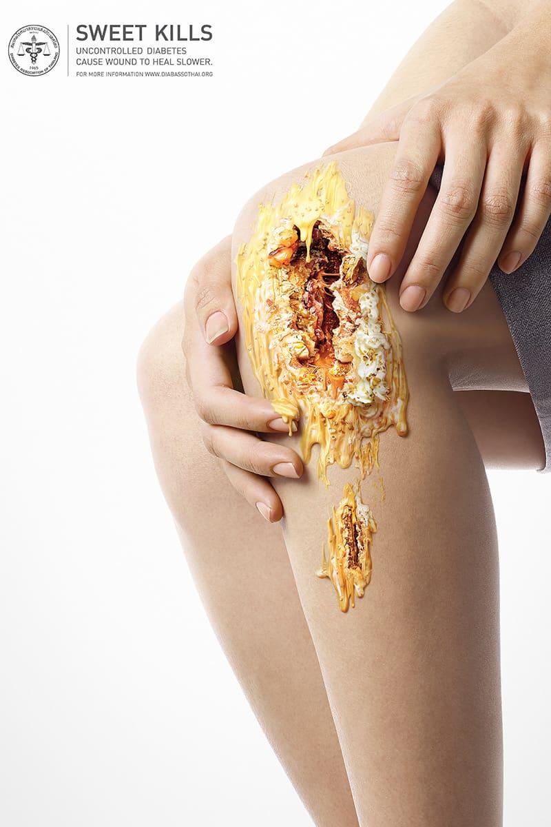 3-sweet-kills-diabetes-awareness-campaign